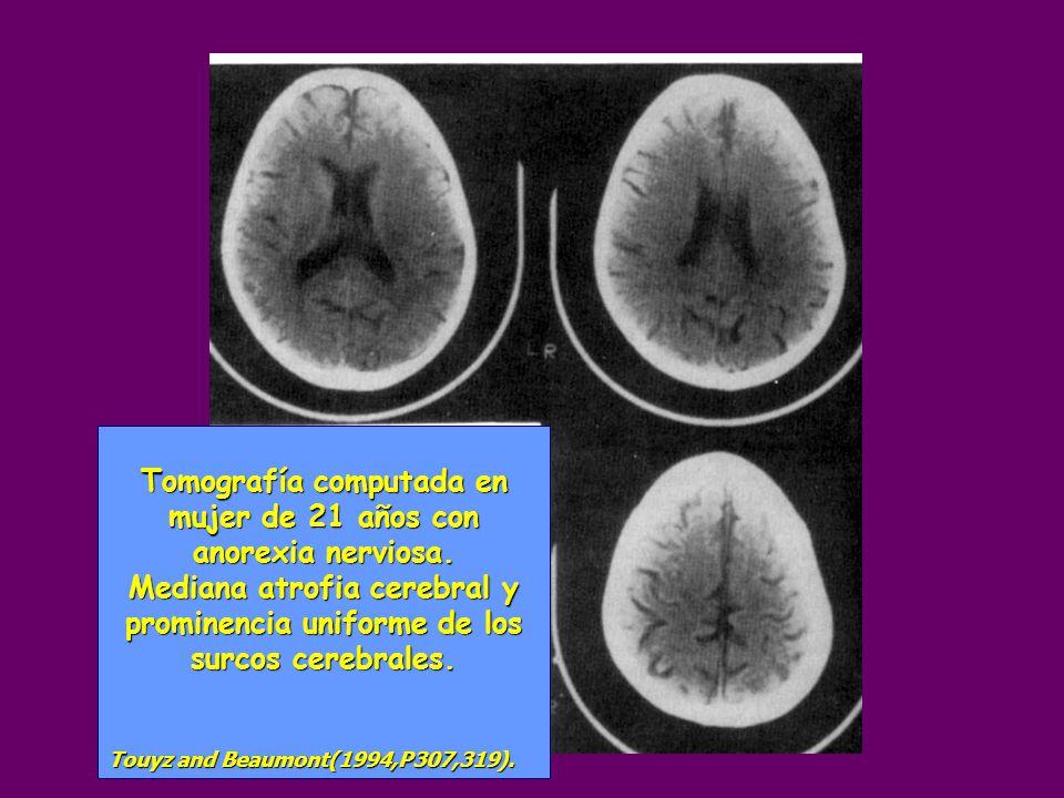 Tomografía computada en mujer de 21 años con anorexia nerviosa. Mediana atrofia cerebral y prominencia uniforme de los surcos cerebrales. Touyz and Be