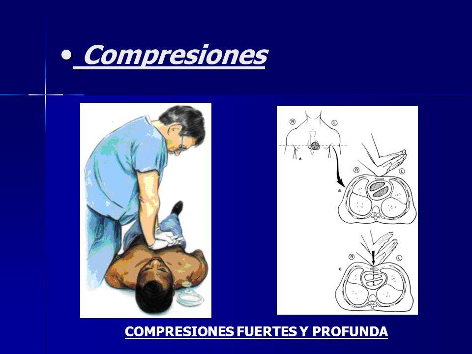Compresiones COMPRESIONES FUERTES Y PROFUNDA