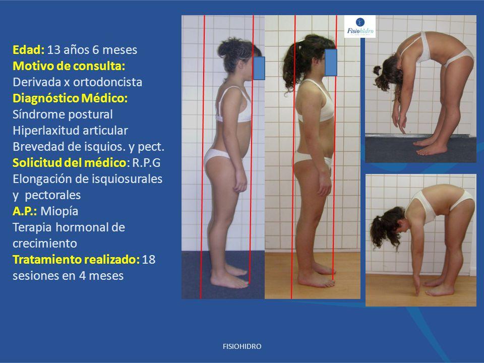 Edad: 13 años 6 meses Motivo de consulta: Derivada x ortodoncista Diagnóstico Médico: Síndrome postural Hiperlaxitud articular Brevedad de isquios. y