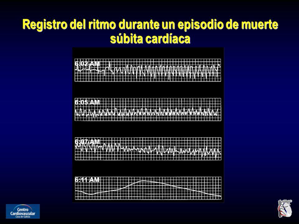 Registro del ritmo durante un episodio de muerte súbita cardíaca 6:02 AM 6:05 AM 6:07 AM 6:11 AM