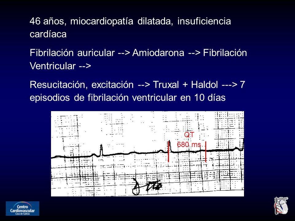 QT 680 ms 46 años, miocardiopatía dilatada, insuficiencia cardíaca Fibrilación auricular --> Amiodarona --> Fibrilación Ventricular --> Resucitación, excitación --> Truxal + Haldol ---> 7 episodios de fibrilación ventricular en 10 días