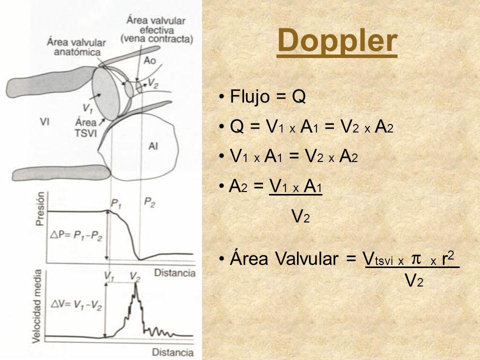 Flujo = Q Q = V 1 x A 1 = V 2 x A 2 V 1 x A 1 = V 2 x A 2 A 2 = V 1 x A 1 V2V2 Área Valvular = V tsvi x π x r 2 V2V2 Doppler