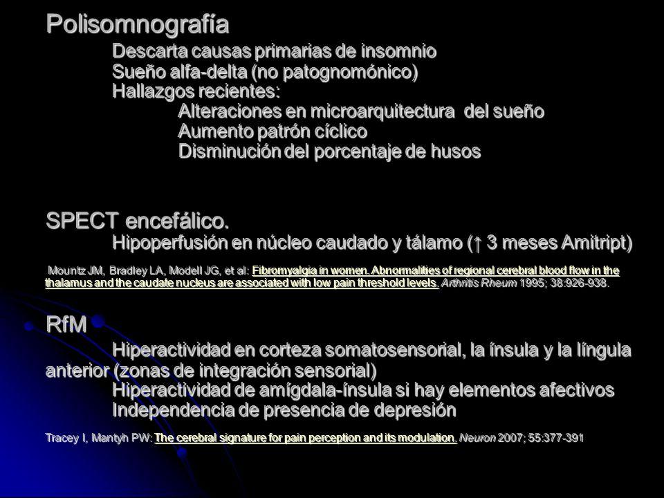 Polisomnografía Descarta causas primarias de insomnio Sueño alfa-delta (no patognomónico) Hallazgos recientes: Alteraciones en microarquitectura del s