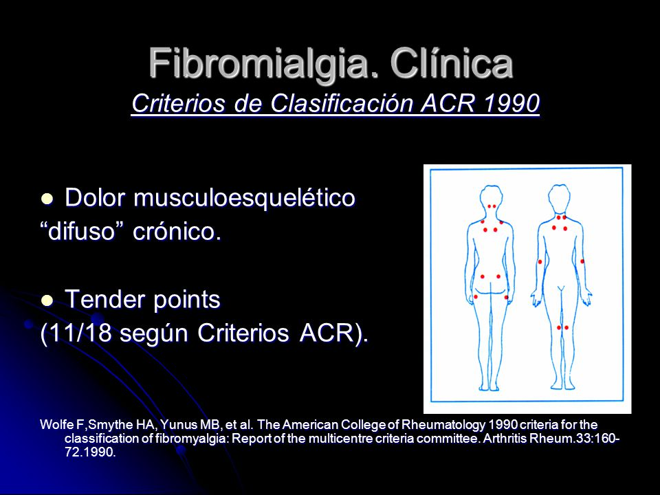 Fibromialgia. Clínica Criterios de Clasificación ACR 1990 Dolor musculoesquelético Dolor musculoesquelético difuso crónico. Tender points Tender point