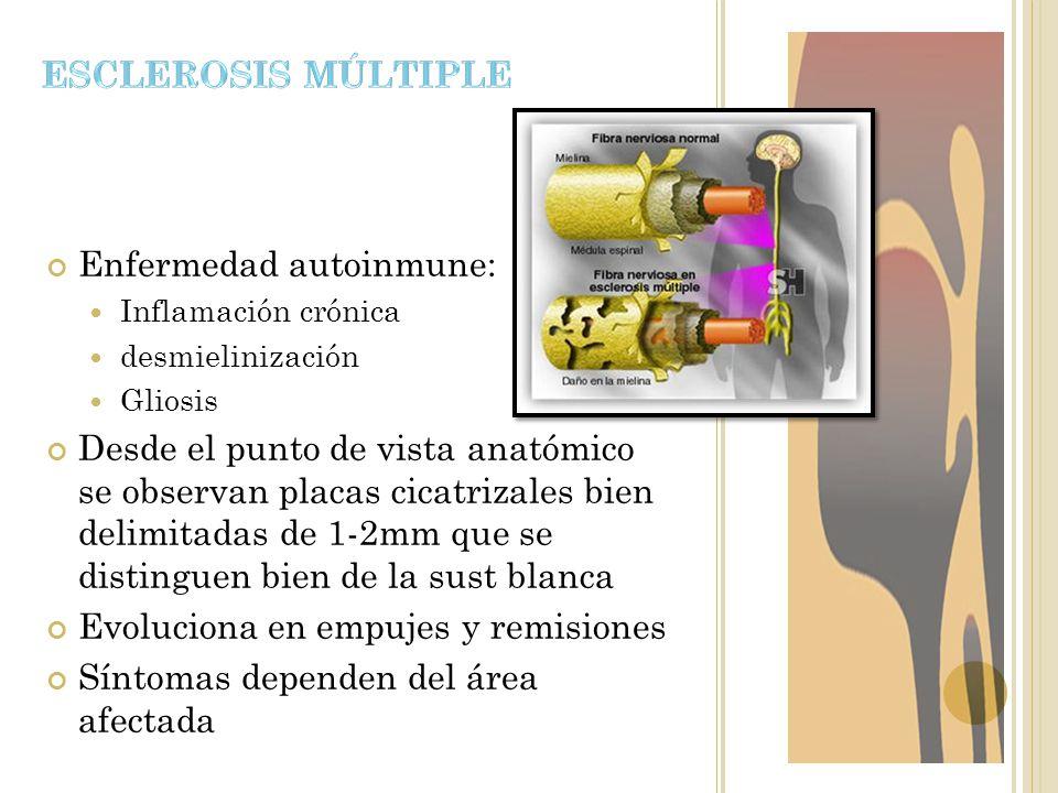 Enfermedad autoinmune: Inflamación crónica desmielinización Gliosis Desde el punto de vista anatómico se observan placas cicatrizales bien delimitadas