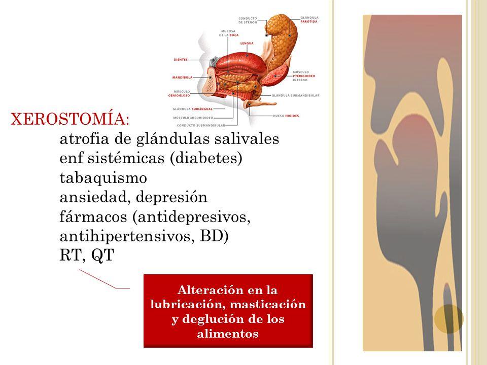 XEROSTOMÍA: atrofia de glándulas salivales enf sistémicas (diabetes) tabaquismo ansiedad, depresión fármacos (antidepresivos, antihipertensivos, BD) R