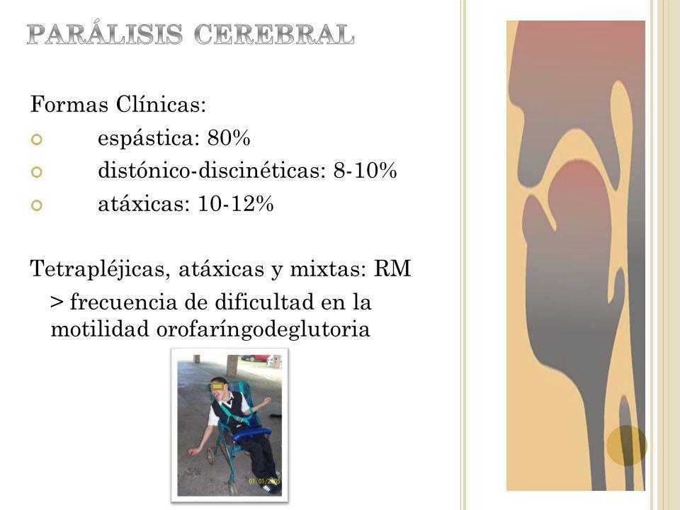 Formas Clínicas: espástica: 80% distónico-discinéticas: 8-10% atáxicas: 10-12% Tetrapléjicas, atáxicas y mixtas: RM > frecuencia de dificultad en la m