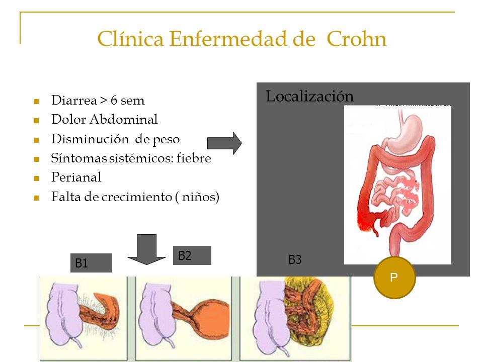 Clínica Enfermedad de Crohn Localización Diarrea > 6 sem Dolor Abdominal Disminución de peso Síntomas sistémicos: fiebre Perianal Falta de crecimiento