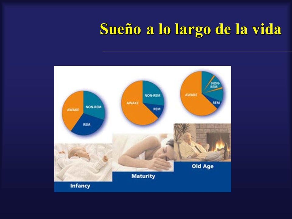 Ciclos de sueño - Hipnograma Las etapas de sueño se encuentran combinadas y alternadas durante el sueño del humano constituyendo ciclos de sueño.
