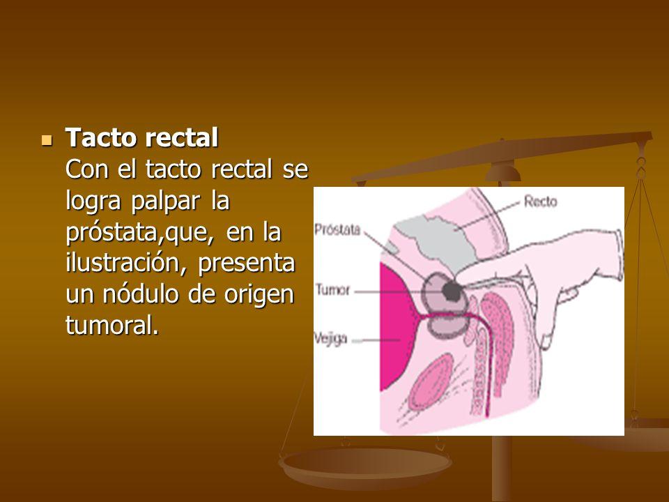 Tacto rectal Con el tacto rectal se logra palpar la próstata,que, en la ilustración, presenta un nódulo de origen tumoral. Tacto rectal Con el tacto r