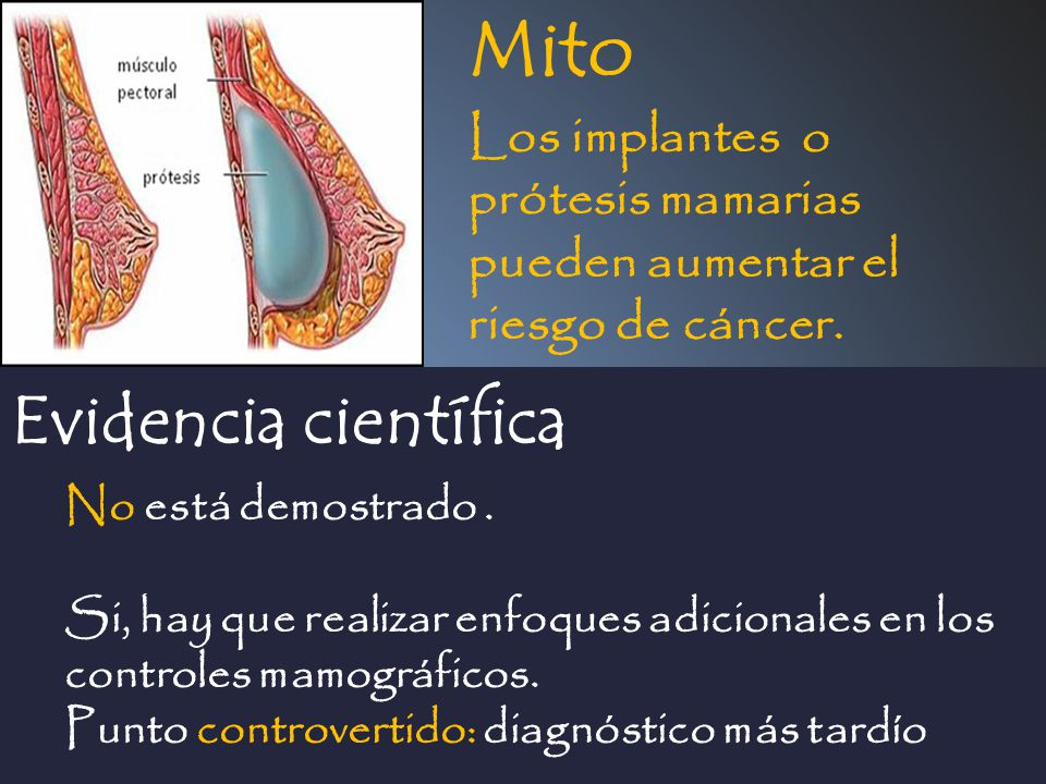 Mito Evidencia científica Los implantes o prótesis mamarias pueden aumentar el riesgo de cáncer. No está demostrado. Si, hay que realizar enfoques adi
