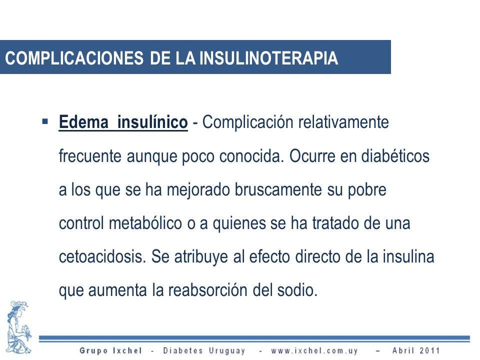 Edema insulínico - Complicación relativamente frecuente aunque poco conocida. Ocurre en diabéticos a los que se ha mejorado bruscamente su pobre contr