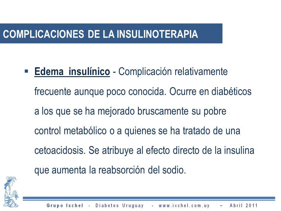 Edema insulínico - Complicación relativamente frecuente aunque poco conocida.