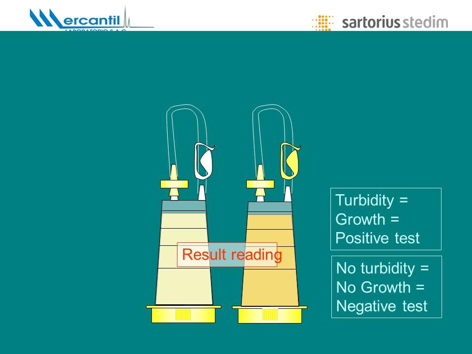 Lic. María Eugenia Carini - Gerente de Producto Result reading Turbidity = Growth = Positive test No turbidity = No Growth = Negative test