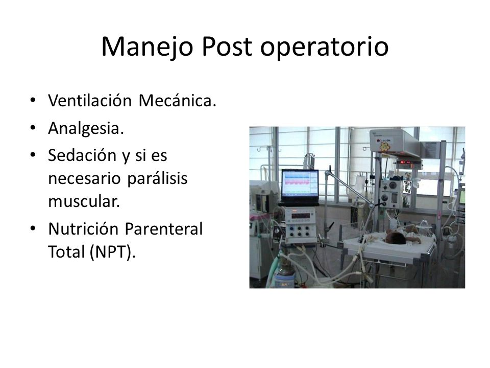 Manejo Post operatorio Ventilación Mecánica.Analgesia.