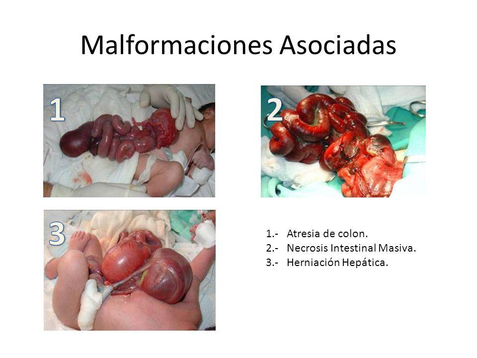 Malformaciones Asociadas 1.- Atresia de colon.2.- Necrosis Intestinal Masiva.