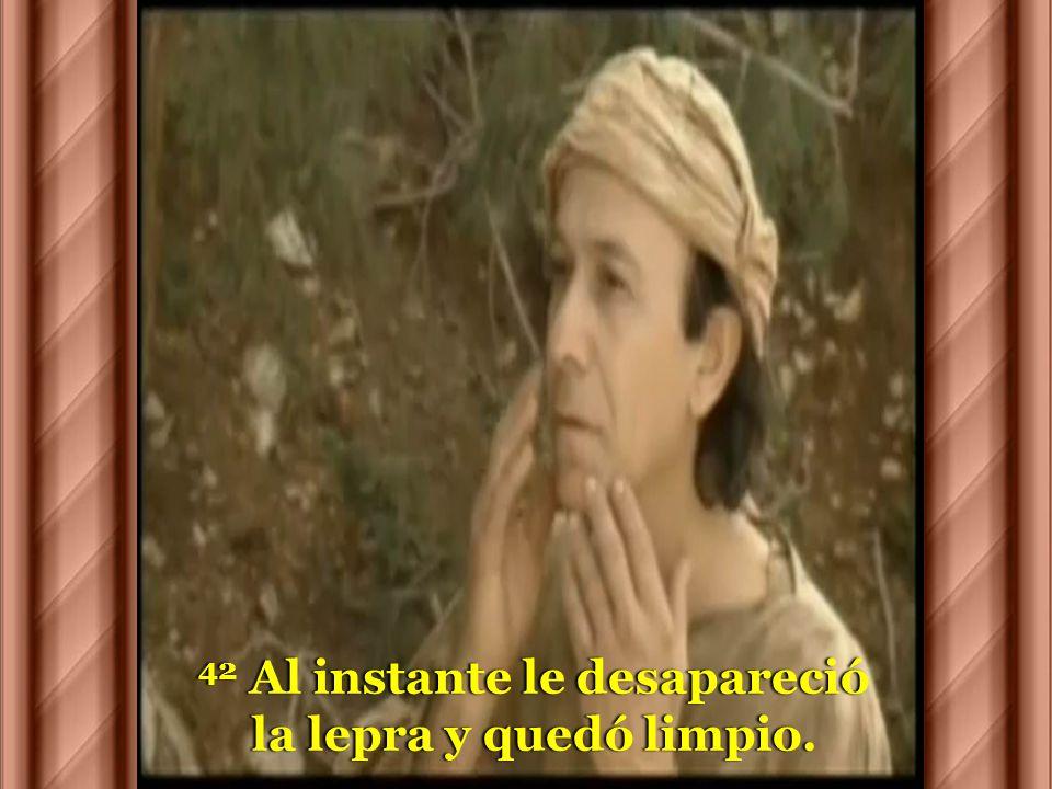 41 Jesús, compadecido, extendió la mano, lo tocómano, lo tocó y le dijo:y le dijo: –Quiero, queda limpio.–Quiero, queda limpio.