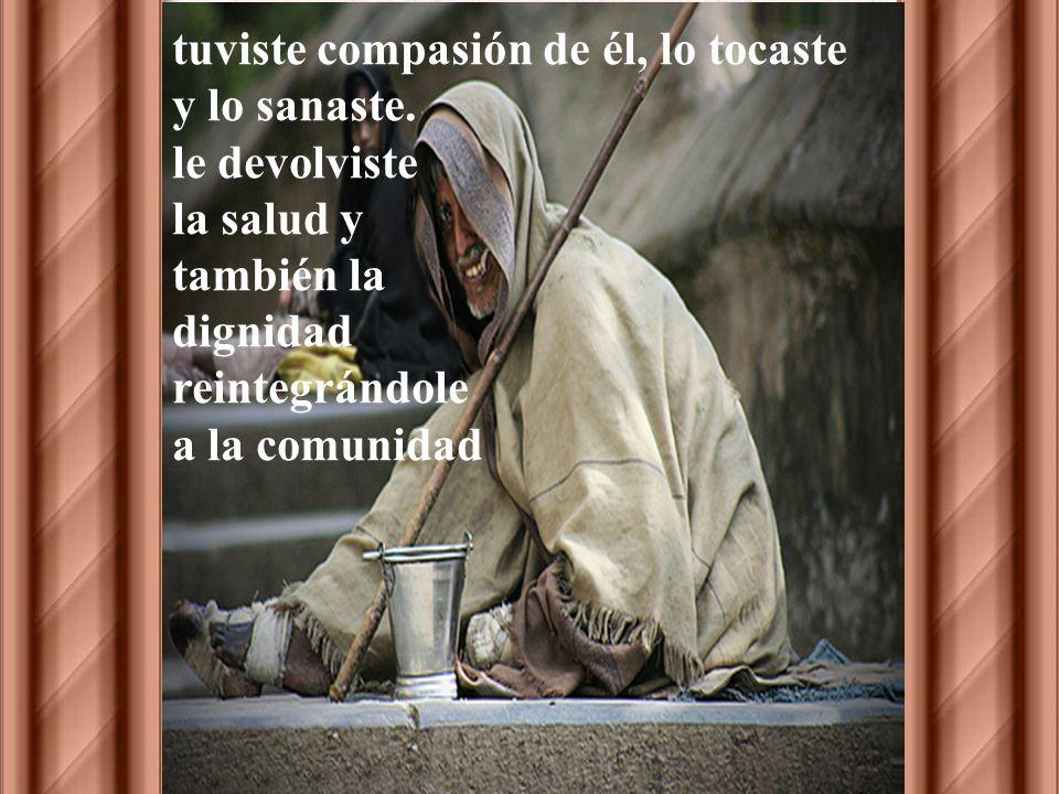 Señor Jesús un leproso se te acerca y te dice... si quieres puedes sanarme... y ante esa súplica. Tú no permaneciste indiferente,