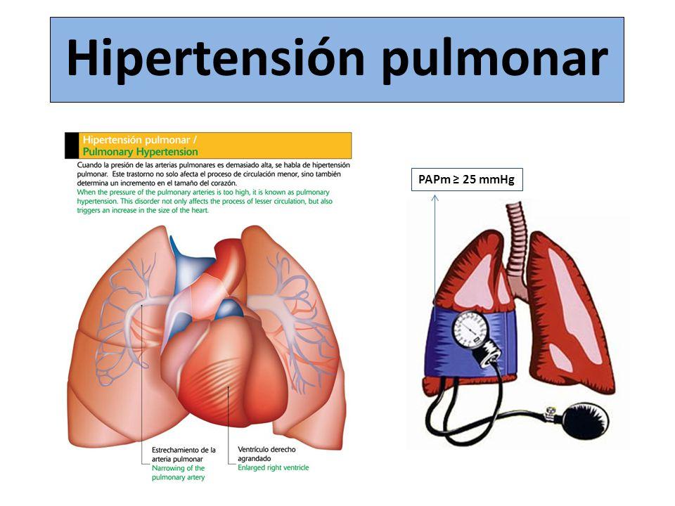 Hipertensión pulmonar PAPm 25 mmHg