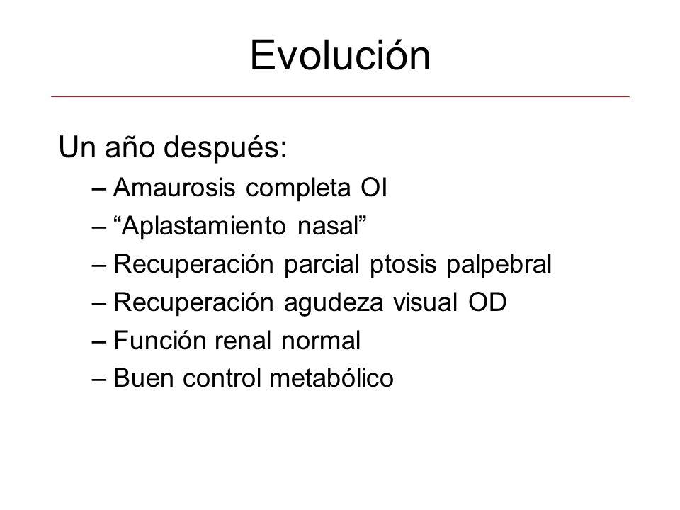 Evolución Un año después: –Amaurosis completa OI –Aplastamiento nasal –Recuperación parcial ptosis palpebral –Recuperación agudeza visual OD –Función