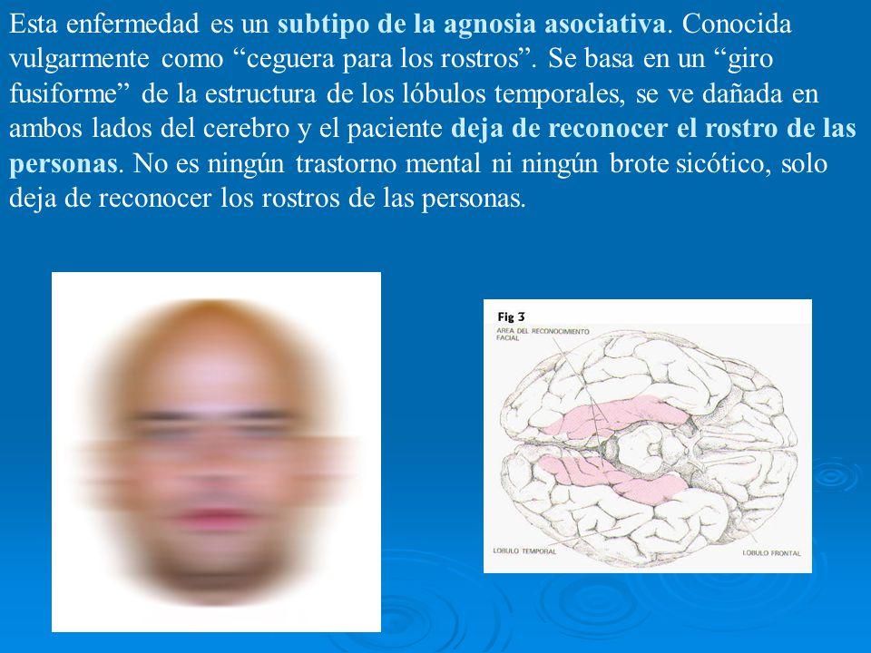 Esta enfermedad es un subtipo de la agnosia asociativa. Conocida vulgarmente como ceguera para los rostros. Se basa en un giro fusiforme de la estruct