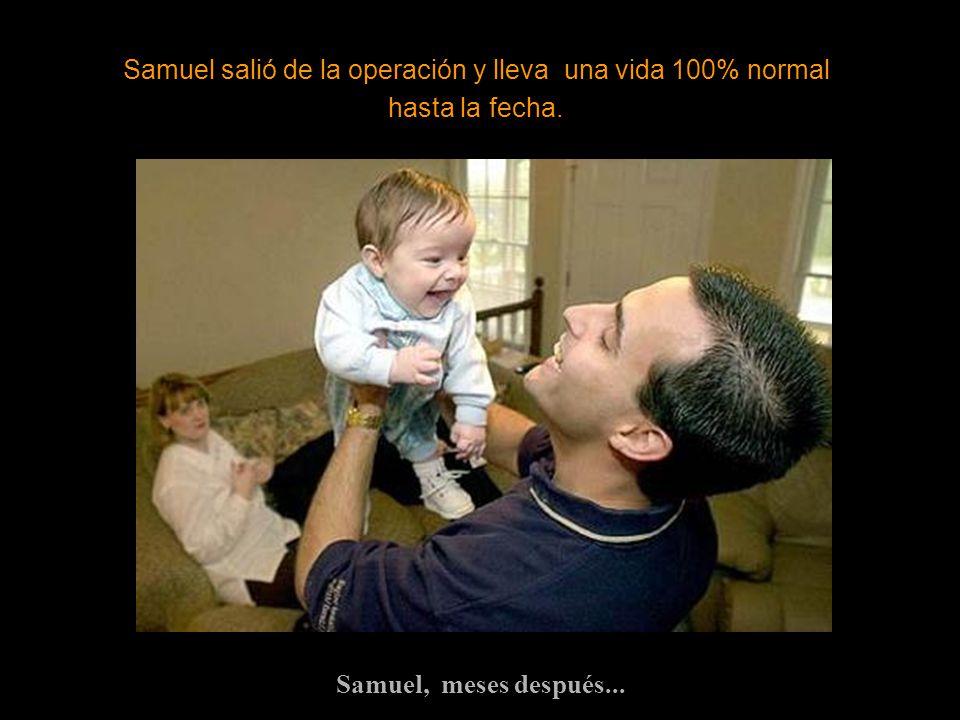 Samuel, meses después... Samuel salió de la operación y lleva una vida 100% normal hasta la fecha.
