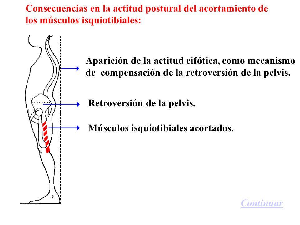 Consecuencias en la actitud postural del acortamiento de los músculos isquiotibiales: Aparición de la actitud cifótica, como mecanismo de compensación de la retroversión de la pelvis.