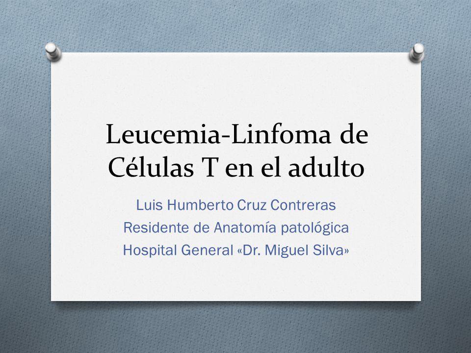 diagnostico leucemia linfoide aguda nino: