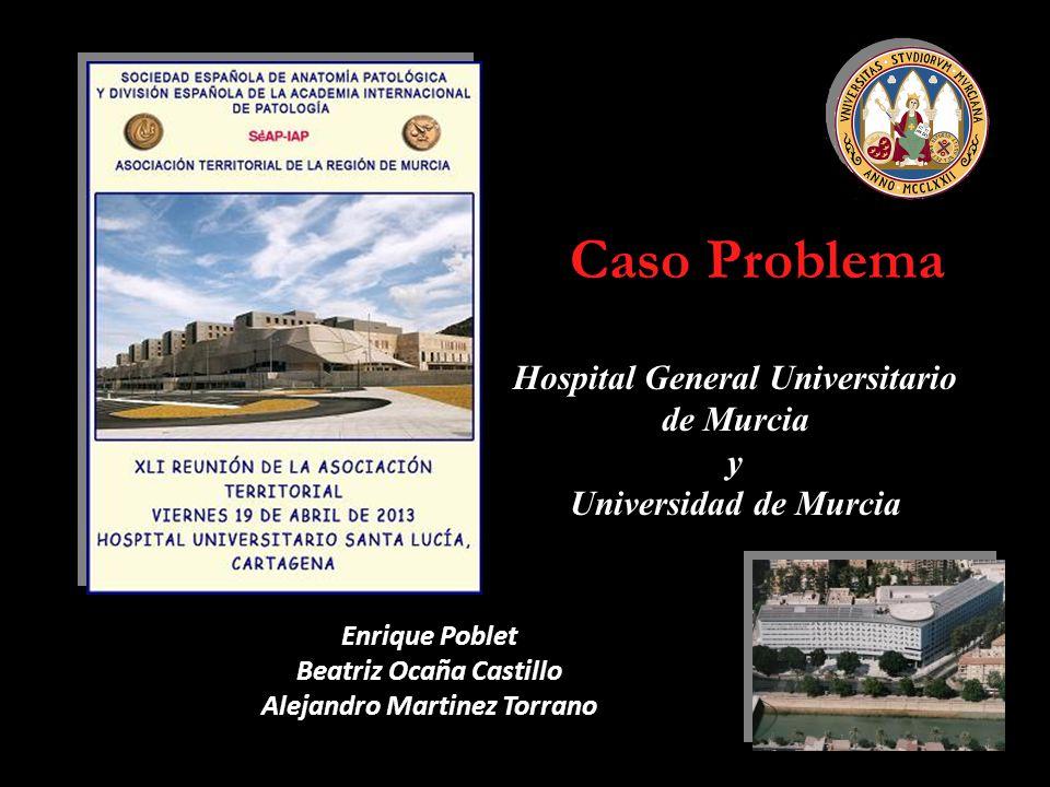 Caso Problema Hospital General Universitario de Murcia y Universidad de Murcia Enrique Poblet Beatriz Ocaña Castillo Alejandro Martinez Torrano
