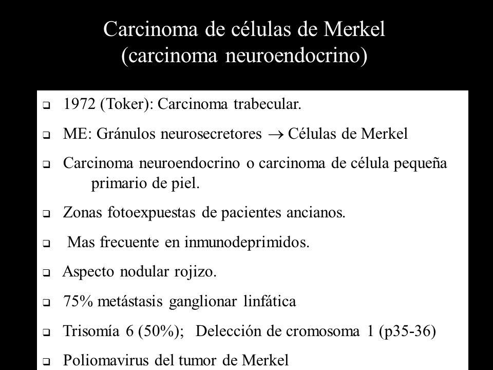 Carcinoma de células de Merkel (carcinoma neuroendocrino) 1972 (Toker): Carcinoma trabecular. ME: Gránulos neurosecretores Células de Merkel Carcinoma