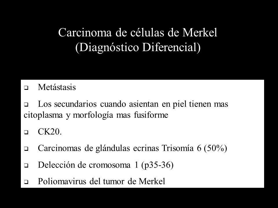 Carcinoma de células de Merkel (Diagnóstico Diferencial) Metástasis Los secundarios cuando asientan en piel tienen mas citoplasma y morfología mas fus