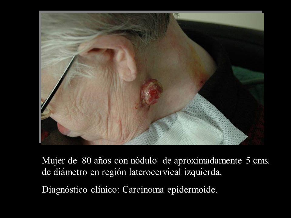 Mujer de 80 años con nódulo de aproximadamente 5 cms. de diámetro en región laterocervical izquierda. Diagnóstico clínico: Carcinoma epidermoide.