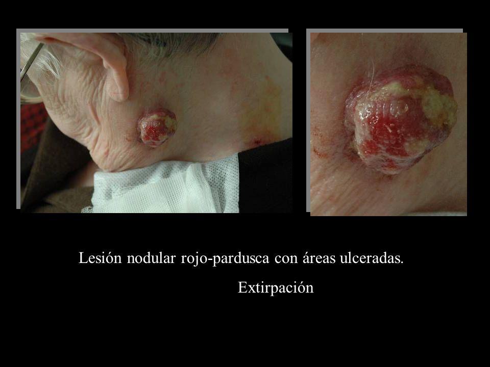 Lesión nodular rojo-pardusca con áreas ulceradas. Extirpación