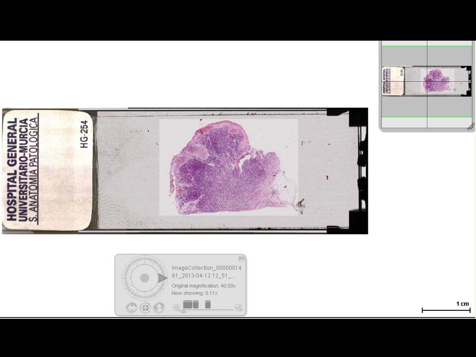 Carcinoma de células de Merkel (Diagnóstico Diferencial) Metástasis Los secundarios cuando asientan en piel tienen mas citoplasma y morfología mas fusiforme CK20.