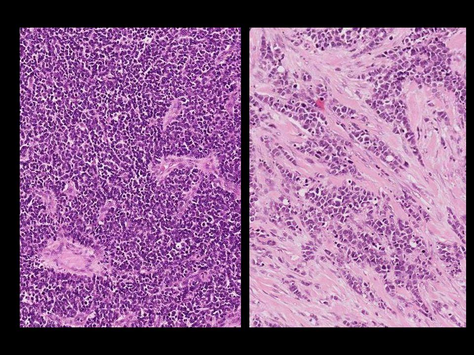 Diagnóstico Carcinoma de células de Merkel + Carcinoma sarcomatoide
