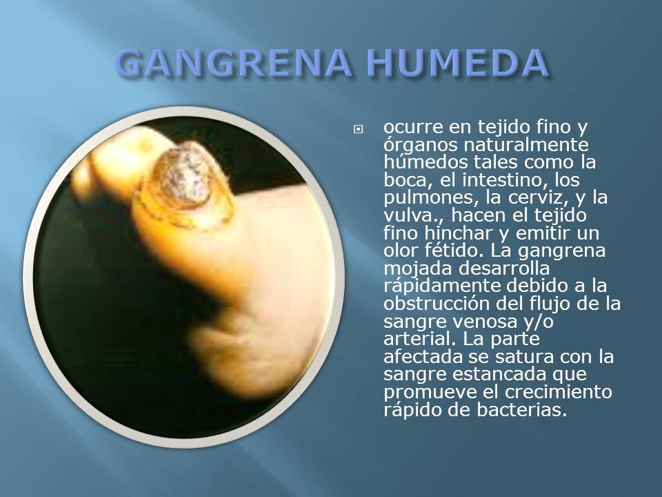 ocurre en tejido fino y órganos naturalmente húmedos tales como la boca, el intestino, los pulmones, la cerviz, y la vulva., hacen el tejido fino hinc