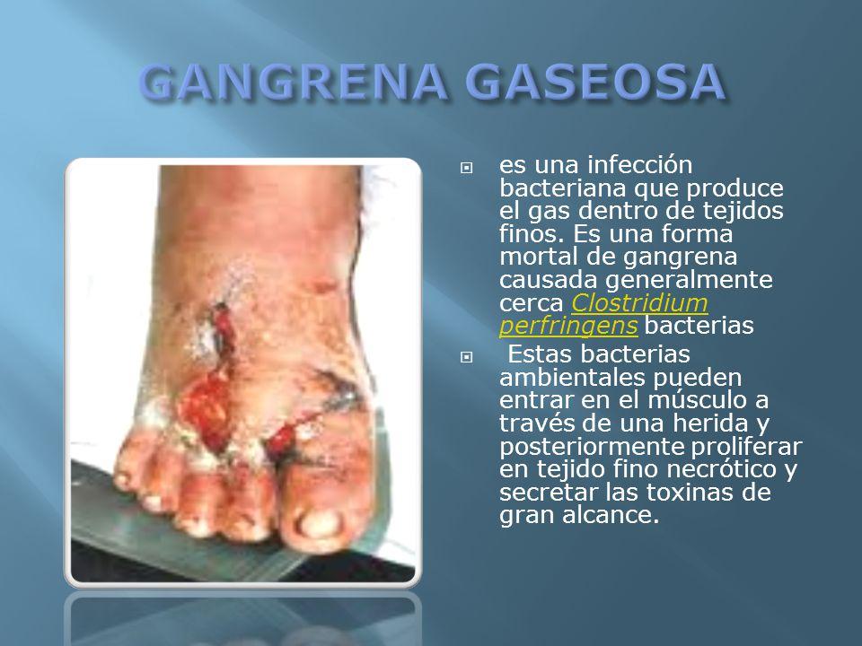 es una infección bacteriana que produce el gas dentro de tejidos finos. Es una forma mortal de gangrena causada generalmente cerca Clostridium perfrin