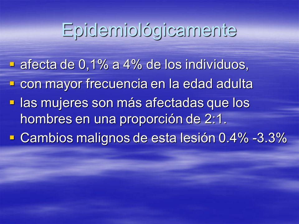 Epidemiológicamente afecta de 0,1% a 4% de los individuos, afecta de 0,1% a 4% de los individuos, con mayor frecuencia en la edad adulta con mayor fre
