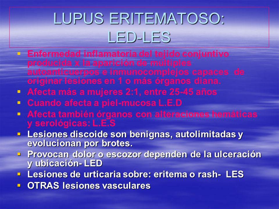 LUPUS ERITEMATOSO: LED-LES Enfermedad inflamatoria del tejido conjuntivo producida x la aparición de múltiples autoanticuerpos e inmunocomplejos capac