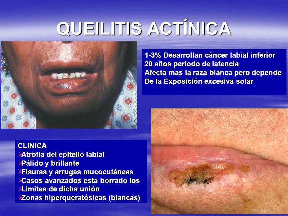 1-3% Desarrollan cáncer labial inferior 20 años periodo de latencia Afecta mas la raza blanca pero depende De la Exposición excesiva solar CLINICA Atr