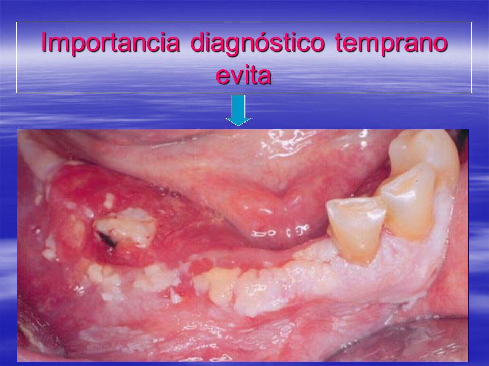 Importancia diagnóstico temprano evita