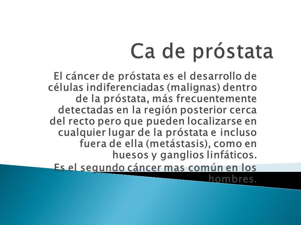 El cáncer de próstata es el desarrollo de células indiferenciadas (malignas) dentro de la próstata, más frecuentemente detectadas en la región posterior cerca del recto pero que pueden localizarse en cualquier lugar de la próstata e incluso fuera de ella (metástasis), como en huesos y ganglios linfáticos.