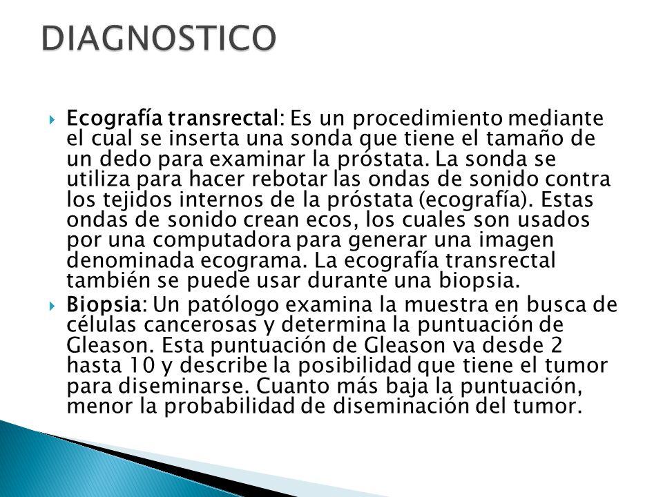 Ecografía transrectal: Es un procedimiento mediante el cual se inserta una sonda que tiene el tamaño de un dedo para examinar la próstata.