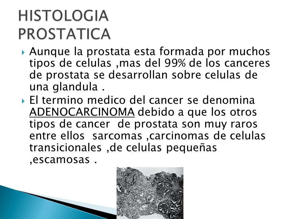 Aunque la prostata esta formada por muchos tipos de celulas,mas del 99% de los canceres de prostata se desarrollan sobre celulas de una glandula.