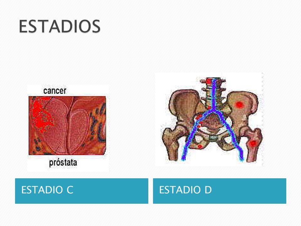 Los síntomas del cáncer de próstata pueden incluir: Problemas para orinar, como dolor, dificultad para iniciar o detener el flujo de orina o goteo Dolor en la parte baja de la espalda Dolor al eyacular