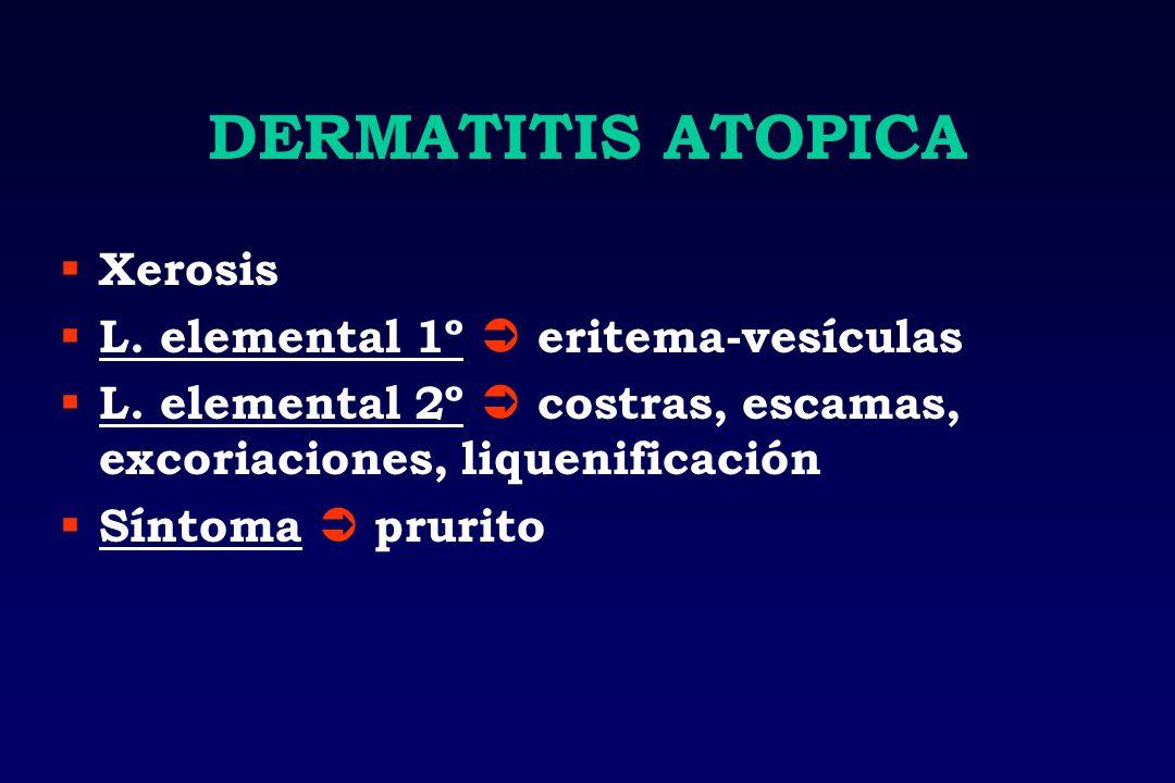 DERMATITIS ATOPICA Xerosis L. elemental 1º eritema-vesículas L. elemental 2º costras, escamas, excoriaciones, liquenificación Síntoma prurito