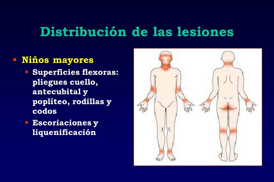 Distribución de las lesiones Niños mayores Superficies flexoras: pliegues cuello, antecubital y poplíteo, rodillas y codos Escoriaciones y liquenifica