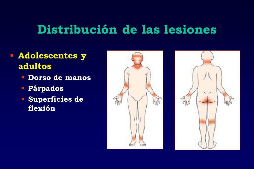 Distribución de las lesiones Adolescentes y adultos Dorso de manos Párpados Superficies de flexión
