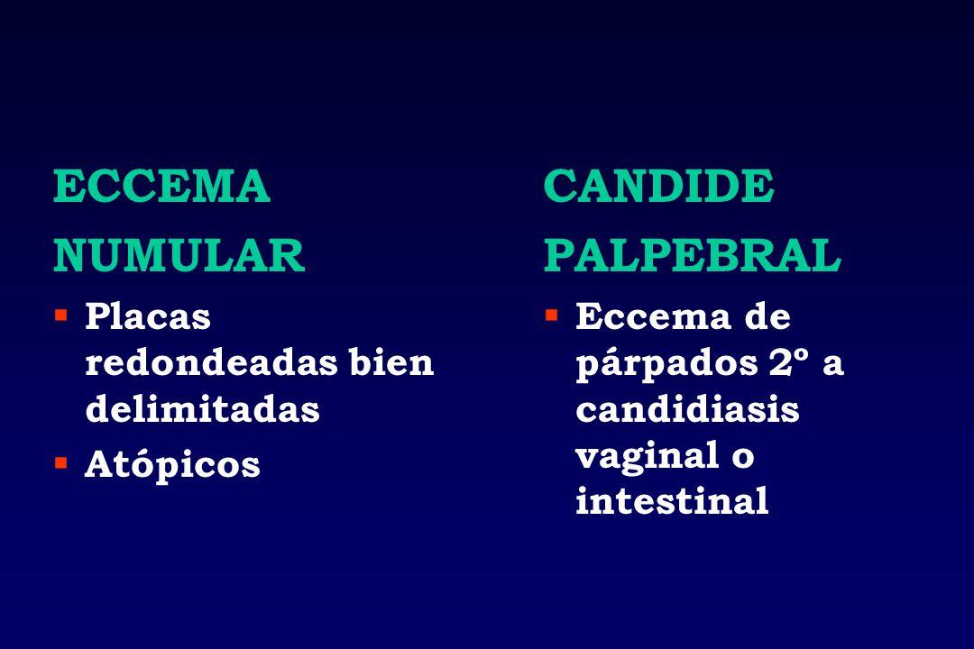 ECCEMA NUMULAR Placas redondeadas bien delimitadas Atópicos CANDIDE PALPEBRAL Eccema de párpados 2º a candidiasis vaginal o intestinal