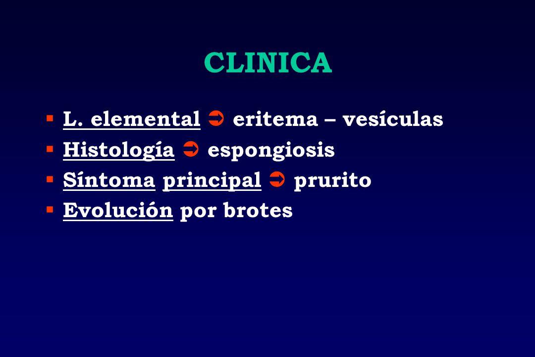 CLINICA L. elemental eritema – vesículas Histología espongiosis Síntoma principal prurito Evolución por brotes